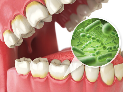 Dental Health and Hear disease