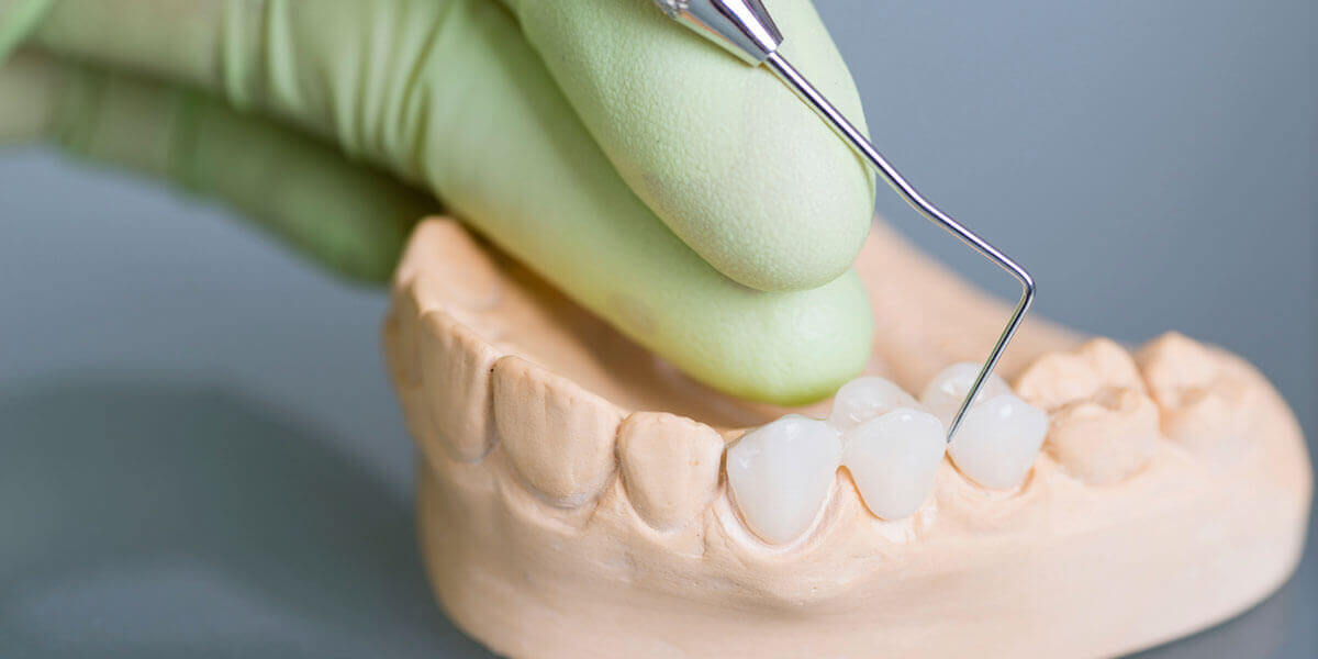 Dental Bridges in West Milford, NJ