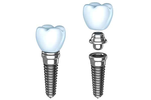 Single Dental Implants in Passaic County