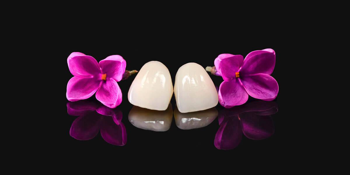 Dental Veneers in West Milford