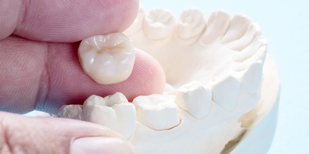 Dental Crowns in West Milford, NJ